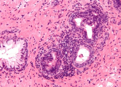 Inflammation_of_prostate